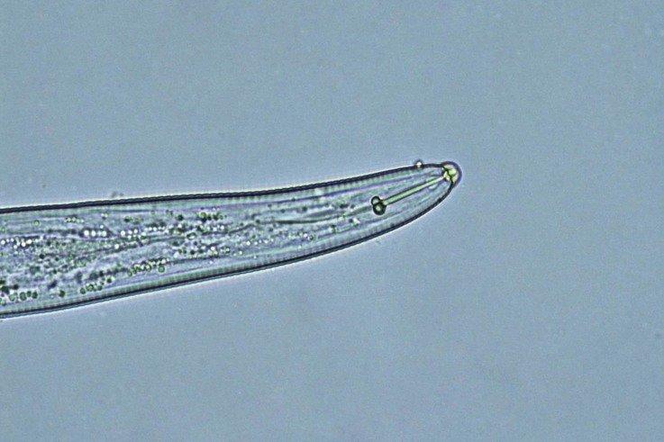 spiral  nematode (2)