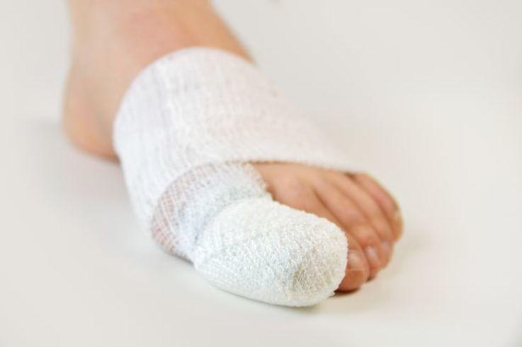 big toe bandage