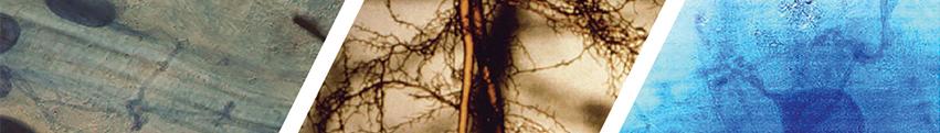 Mycological Mycorrhizae through a microscope