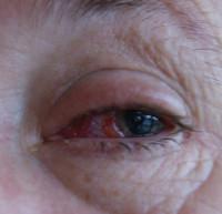IanSmith Eye2