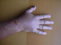 Blisstered hand.JPG